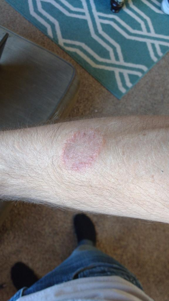 ringworm from BJJ